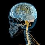 脳過敏症候群