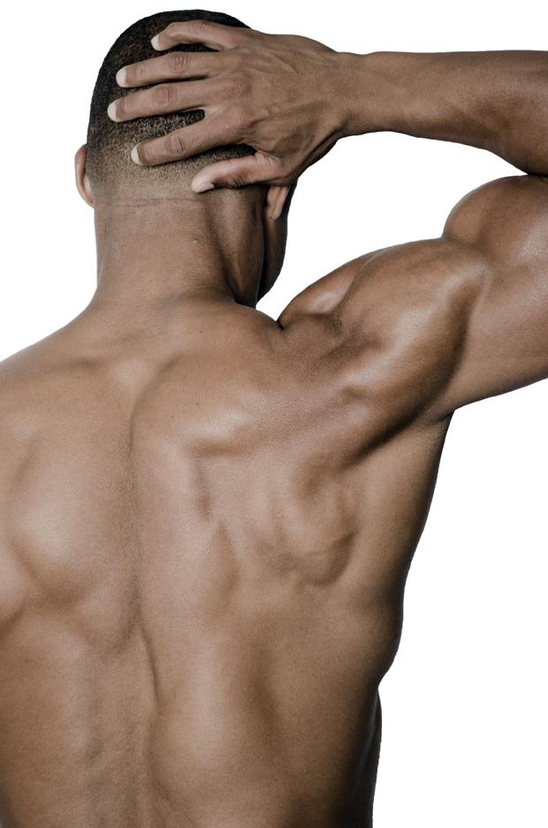 脊柱側弯症の整体症例
