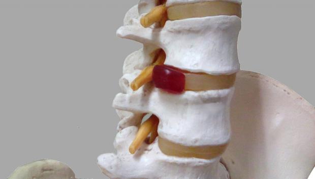 椎間板ヘルニアと足のしびれの関係